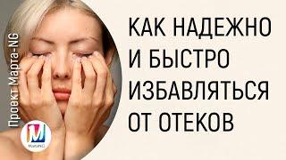 Как НАДЕЖНО и БЫСТРО избавляться от отеков | Марта Николаева-Гарина