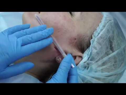 Обвисание кожи на щеках