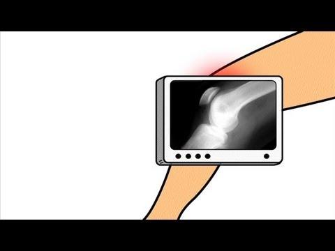 Izom- és ízületi fájdalom neurózissal