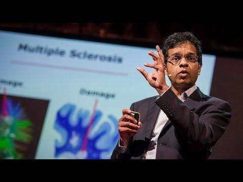 הרצאה: האם המוח האנושי יכול לתקן את עצמו ומה ההשלכות של כך?