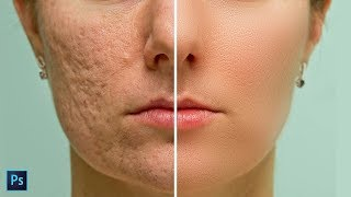 High-End Skin Softening in Photoshop - Remove Blemishes, Wrinkles, Acne Easily and Quickly