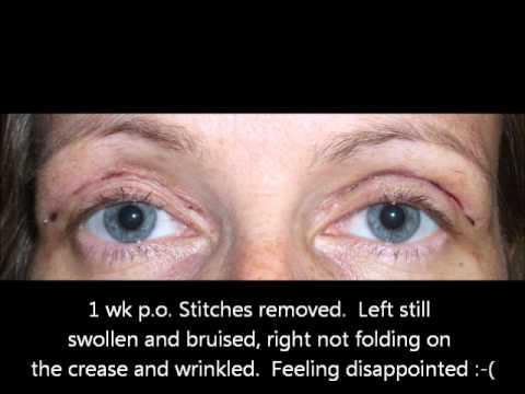 Facial kumbinasyon na balat sa bahay