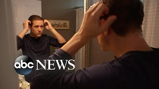 New drug could hold promise for alopecia