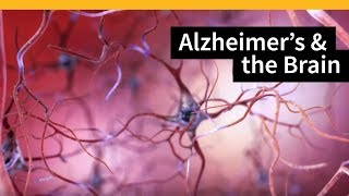 How Alzheimer's Changes the Brain