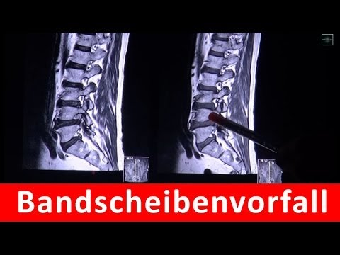 Video-Tutorials auf Massage Osteochondrose