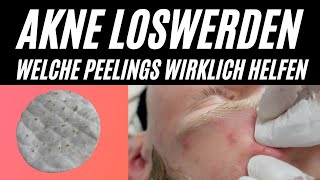 Akne Behandlung deutsch: Ausreinigen lassen, chemisches Säure Peeling um Akne zu bekämpfen, Mainz