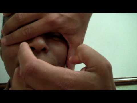 Dr. Epstein – Rhinoplasty Procedure 10 week Post Op – Female Patient