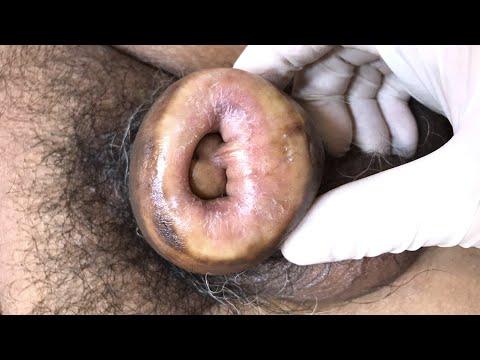 Készítsen magának vákuumszivattyút a péniszhez
