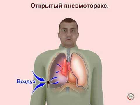 Травмы груди, первая помощь