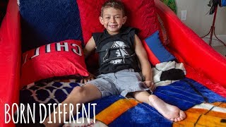 Incredible Boy Uses Ankle As His Knee | BORN DIFFERENT