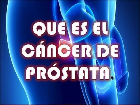 El cáncer de próstata es un tratamiento experimental