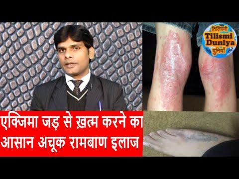 Psoriasi di trattamento di unghie da forum di rimedi di gente