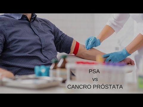 Trus prostată se înscrie sf