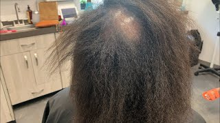 How to fix damaged hair  bald spot in middle plus more