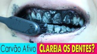 Carvao Mineral Para Clarear Os Dentes 免费在线视频最佳电影电视节目