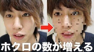 【検証】顔にホクロが何個増えると気づくのか?