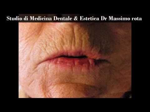 Plexr -Estetica Periorale -периоральные эстетика- Dr Massimo Rota