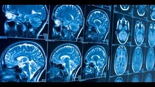 Tägliche Gehirnattacken – Dr. Manfred Doepp