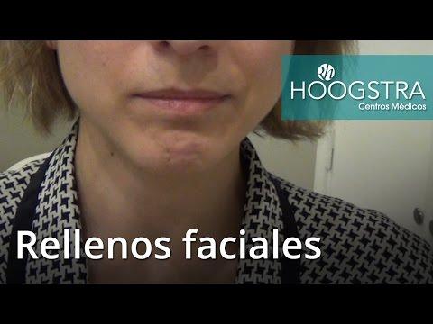 Rellenos faciales (16132)