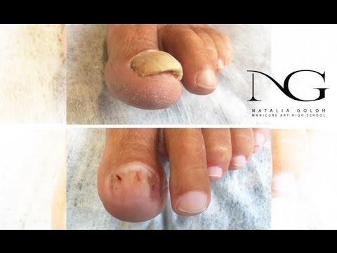 Poschelteli die Nägel auf den Beinen nicht gribok