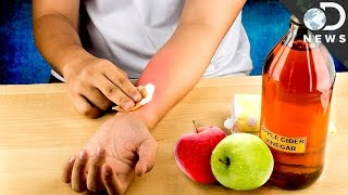 Is Apple Cider Vinegar A Miracle Cure?