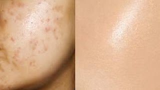 Remove Acne Marks |  3 Step - Natural Remedies for Pimple Marks | _ (Prachi SuperWowStyle)