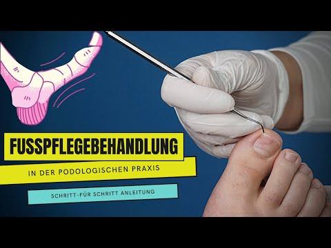 Die Weiße in der Behandlung gribka der Nägel