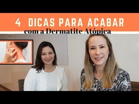 Dermografizm em neurodermatitis