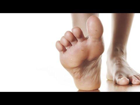 Boala piciorului în varicoză