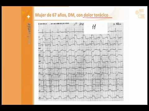 ¿Qué es la hipertensión esencial y su tratamiento