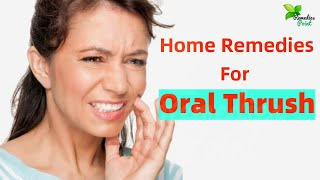 Home Remedies To Get Rid Of Oral Thrush | How to Treat Oral Thrush