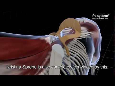 Zeiten, in denen Brust Osteochondrose