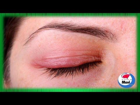 Remedios caseros para la blefaritis (Inflamación del parpado)