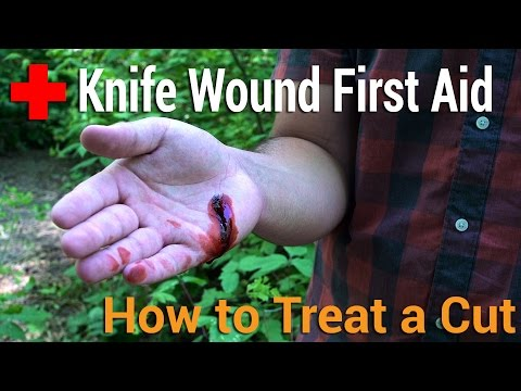 How to Treat a Cut | Knife Wound First Aid