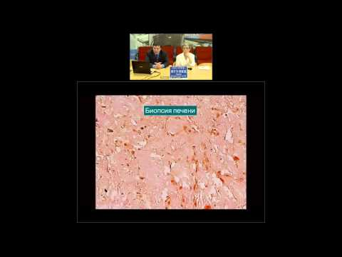 Современные представления о диагностике и клинике амилоидоза