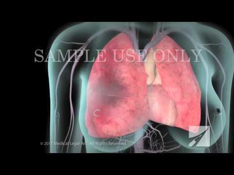 Trattamento di varicosity vitaphone risposte