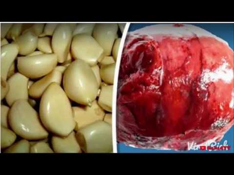 Extracción de la próstata consecuencia adenoma
