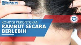 Kebotakan, Kondisi Kerontokan Rambut yang Parah Sebabkan Adanya Bagian Pitak di Kulit Kepala