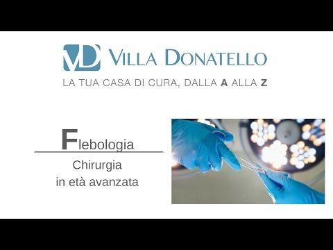 Operazione di varicosity sotto che anestesia