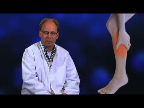 Akute Exazerbation der Prostata