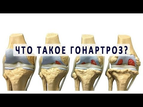 Артрит или артроз плечевого сустава симптомы и лечение