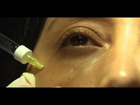 Combler les cernes grâce à l'acide hyaluronique - Allô Docteurs