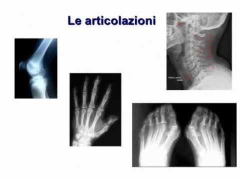 Urtare sul retro del collo osteocondrosi
