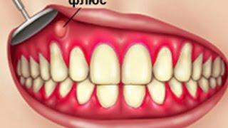 Как вылечить флюс  Советы стоматолога  Эндодонтия  Терапевтическая стоматология
