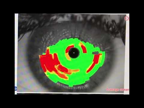 Лазерная коррекция зрения в серпухове