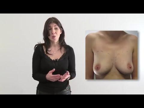 La plastique sur la poitrine à tambove