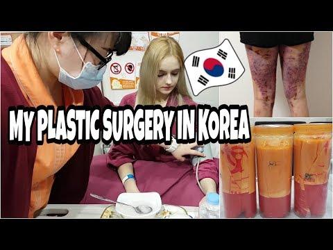 ПЛАСТИЧЕСКАЯ ОПЕРАЦИЯ В КОРЕЕ (ЛИПОСАКЦИЯ) /PLASTIC SURGERY IN KOREA/ 365mc / Liposuction