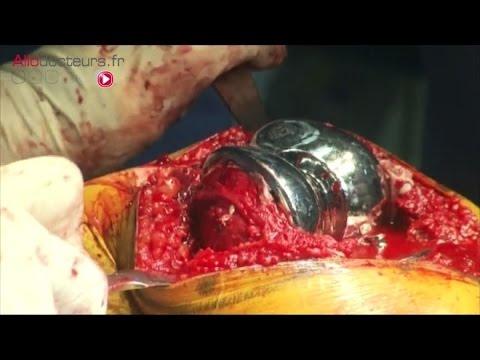 Létiologie et la pathogénie de la phlébite des membres inférieurs