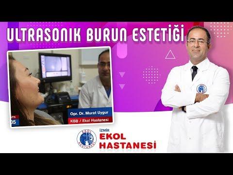Ultrasonik Burun Estetiği - Opr. Dr. Murat Uygur - İzmir Ekol Hastanesi
