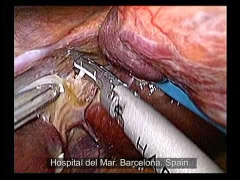 I prezzi di un intervento chirurgico per rimuovere il tumore nella prostata